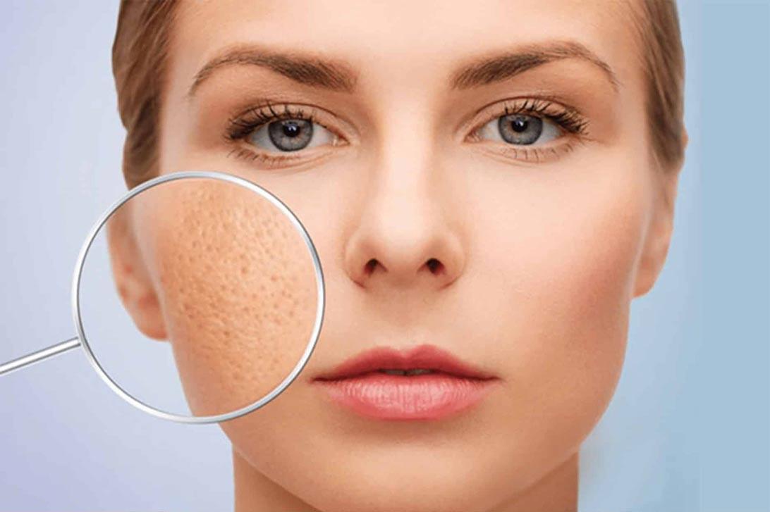 Rosalia by Bảo Hiên - Xịt khoáng cho da mụn hiệu quả đến đâu?